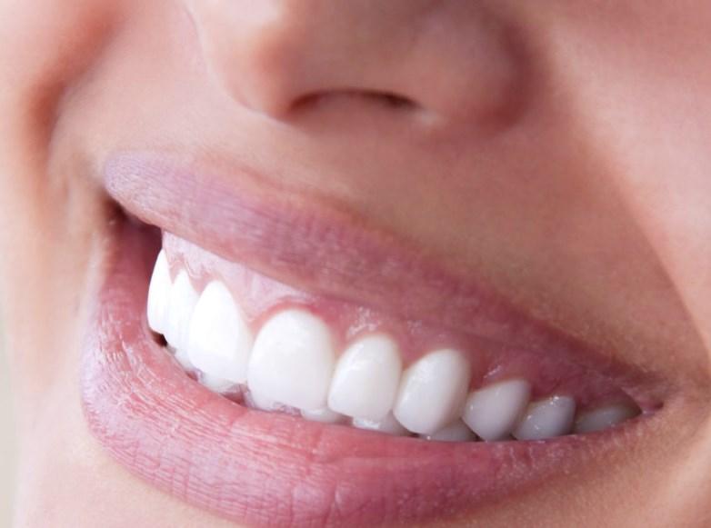 Pentingnya Merawat Gigi
